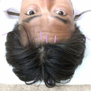 頭痛 脳疲労 熱中症 大阪市 福島区 整体 カイロプラクティック